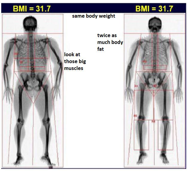 Same BMI and body weight, markedly different body composition